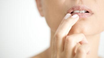 Lippenherpes – wenn's kribbelt, schnell reagieren